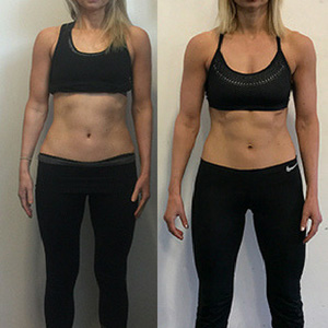 Female transformation